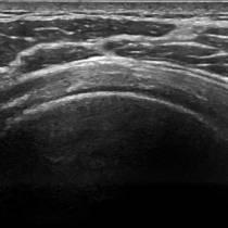 Shoulder ultrasound image