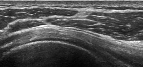 Image for Article: Musculoskeletal Ultrasound