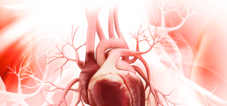 Image for cardiac Tag