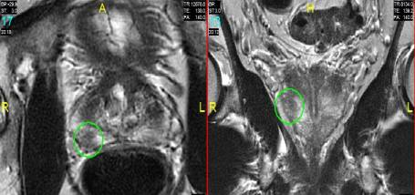 Image for Article: Prostate MRI Imaging