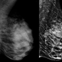 breast tomosynthesis image