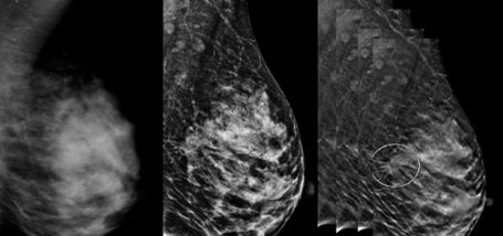Image for Article: Digital Breast Tomosynthesis